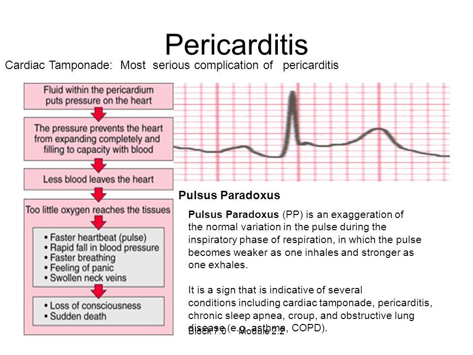 Pericarditis Cardiac Tamponade: Most serious complication of pericarditis Pulsus Paradoxus Pulsus Paradoxus (PP) is an exaggeration of the normal vari