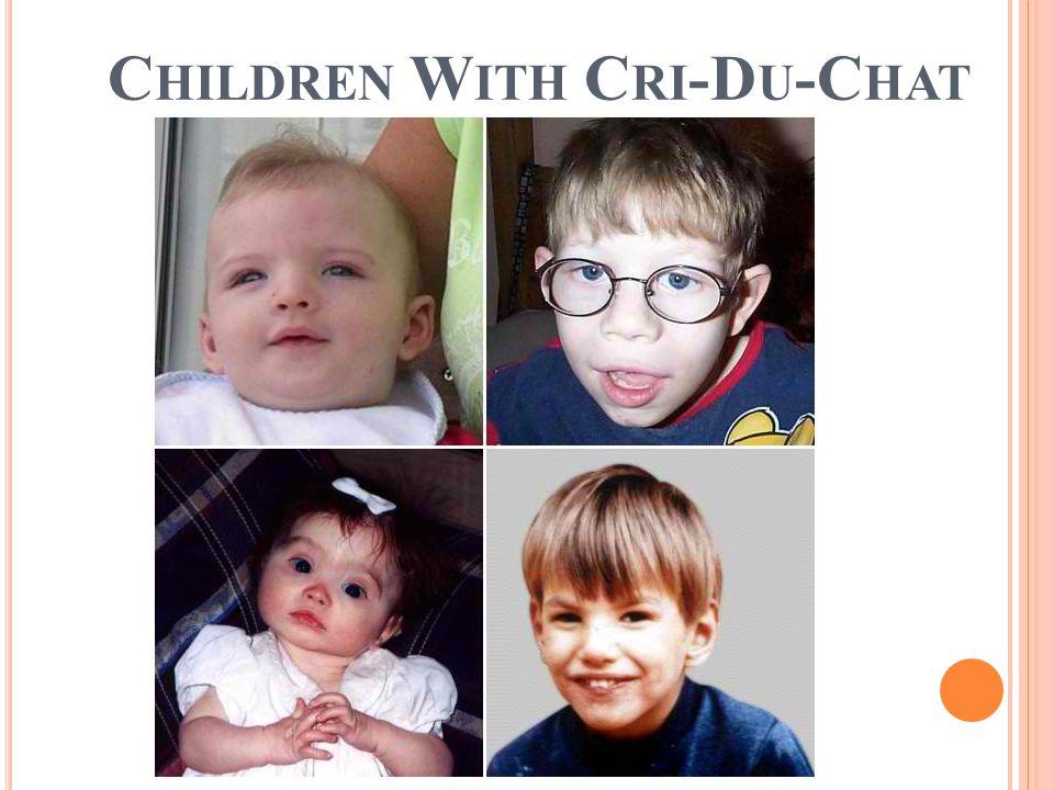 C HILDREN W ITH C RI -D U -C HAT