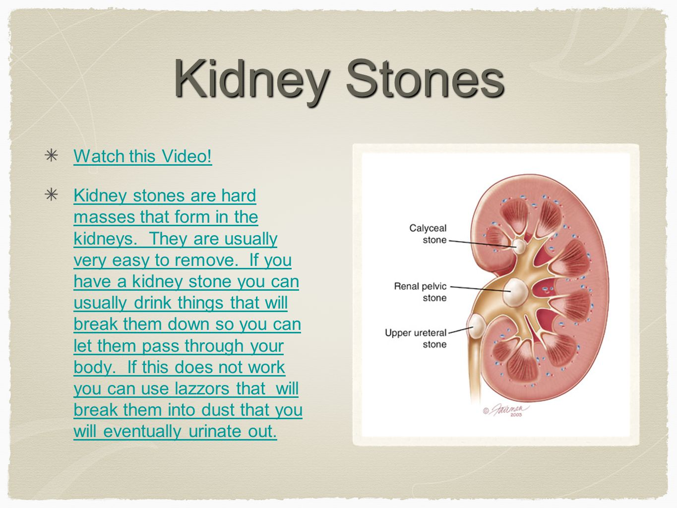 Kidney Stones Watch this Video. Kidney stones are hard masses that form in the kidneys.
