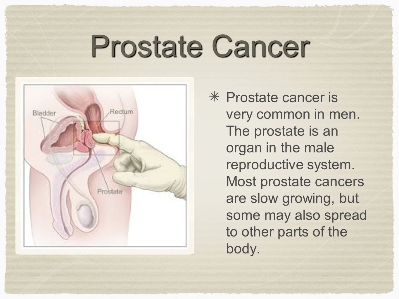 Prostate Cancer Prostate cancer is very common in men.