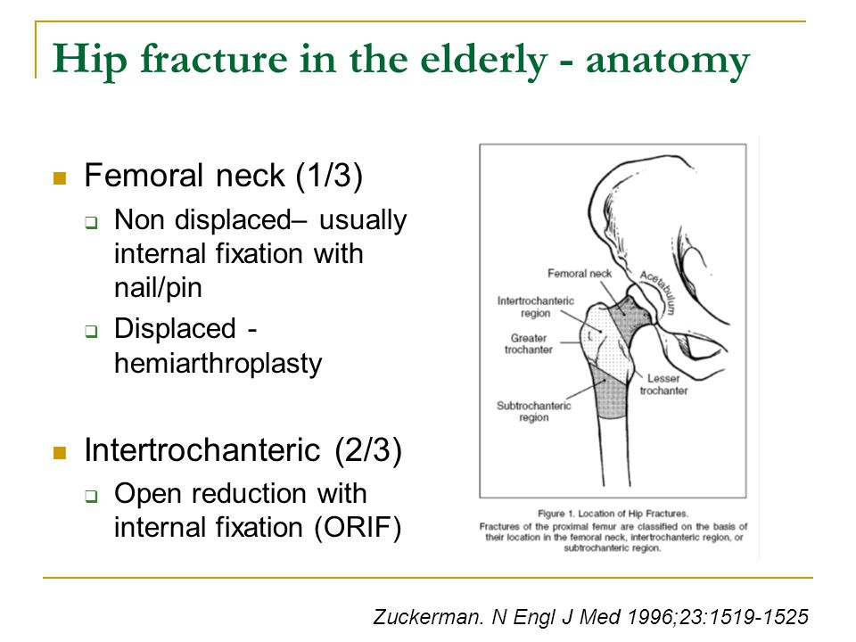 Hip fracture in the elderly - anatomy Femoral neck (1/3)  Non displaced– usually internal fixation with nail/pin  Displaced - hemiarthroplasty Intertrochanteric (2/3)  Open reduction with internal fixation (ORIF) Zuckerman.