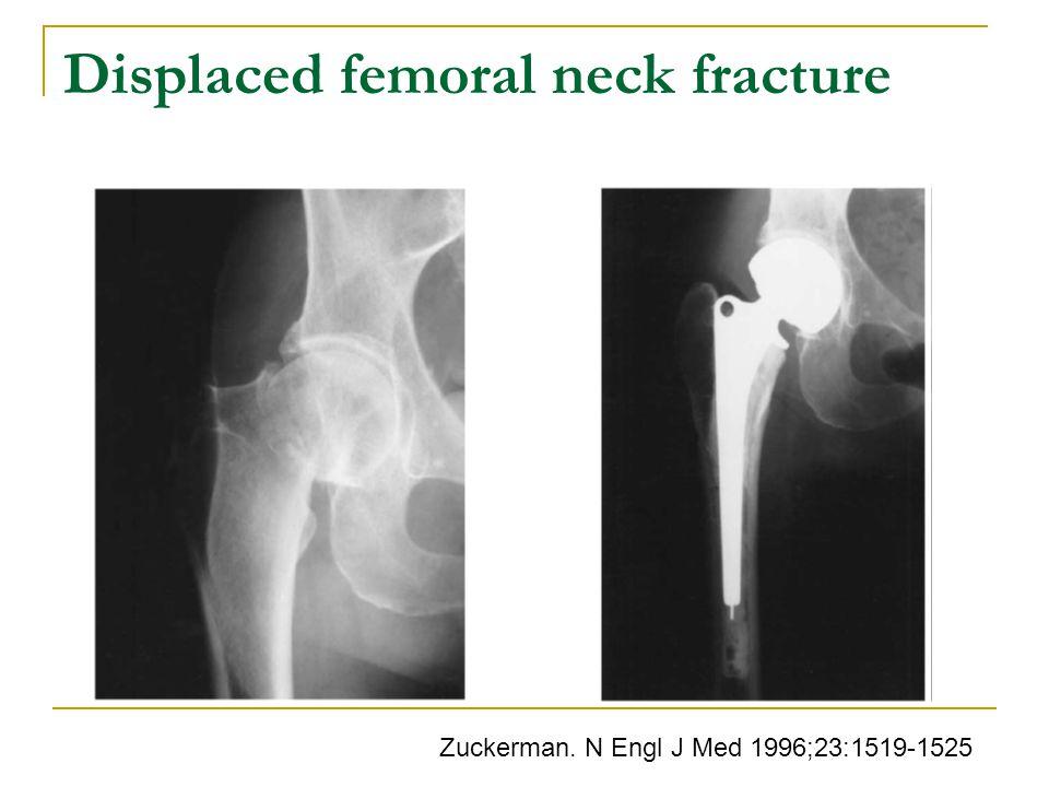 Displaced femoral neck fracture Zuckerman. N Engl J Med 1996;23:1519-1525