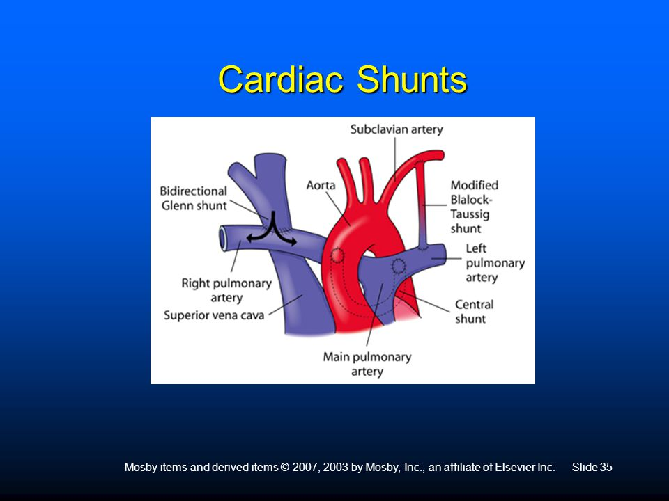 Mosby items and derived items © 2007, 2003 by Mosby, Inc., an affiliate of Elsevier Inc.Slide 35 Cardiac Shunts