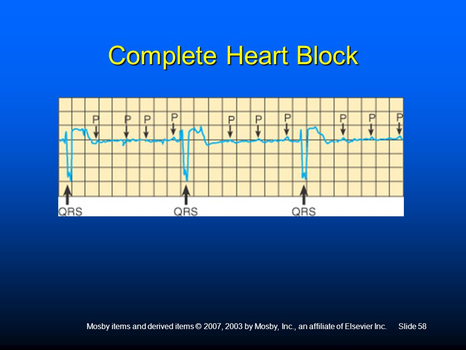 Mosby items and derived items © 2007, 2003 by Mosby, Inc., an affiliate of Elsevier Inc.Slide 58 Complete Heart Block