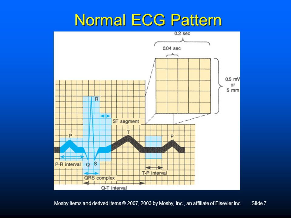Mosby items and derived items © 2007, 2003 by Mosby, Inc., an affiliate of Elsevier Inc.Slide 7 Normal ECG Pattern