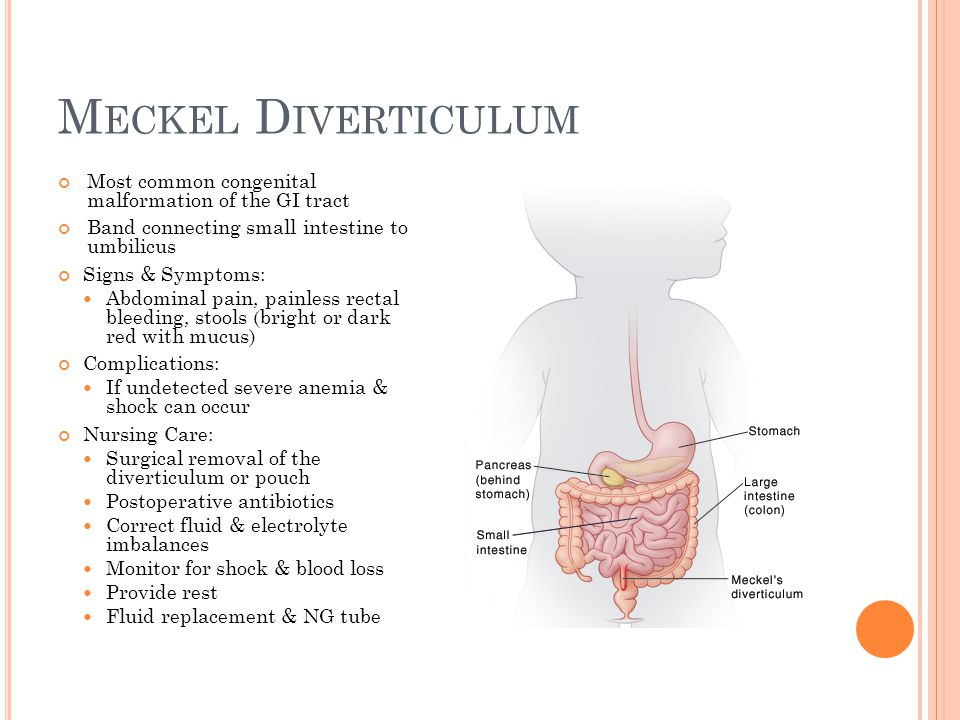 M ECKEL D IVERTICULUM Most common congenital malformation of the GI tract Band connecting small intestine to umbilicus Signs & Symptoms: Abdominal pai