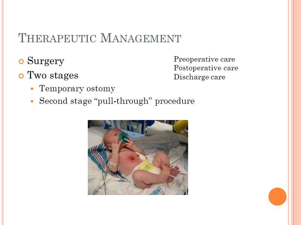T HERAPEUTIC M ANAGEMENT Surgery Two stages Temporary ostomy Second stage pull-through procedure Preoperative care Postoperative care Discharge care