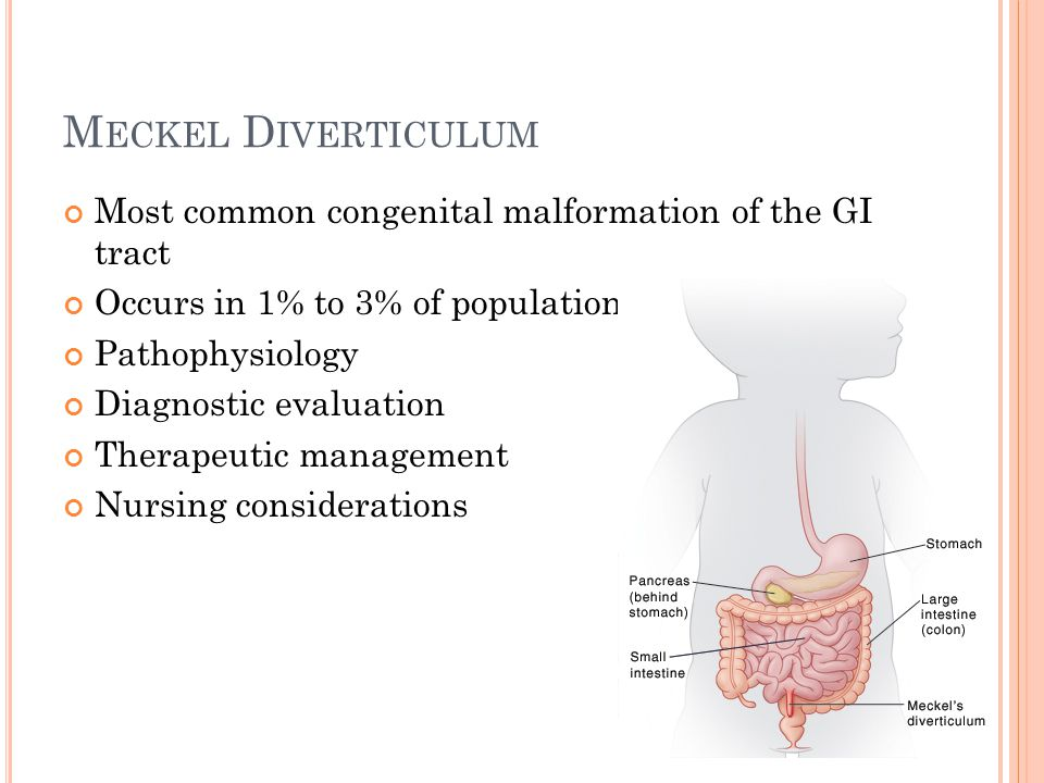 M ECKEL D IVERTICULUM Most common congenital malformation of the GI tract Occurs in 1% to 3% of population Pathophysiology Diagnostic evaluation Thera