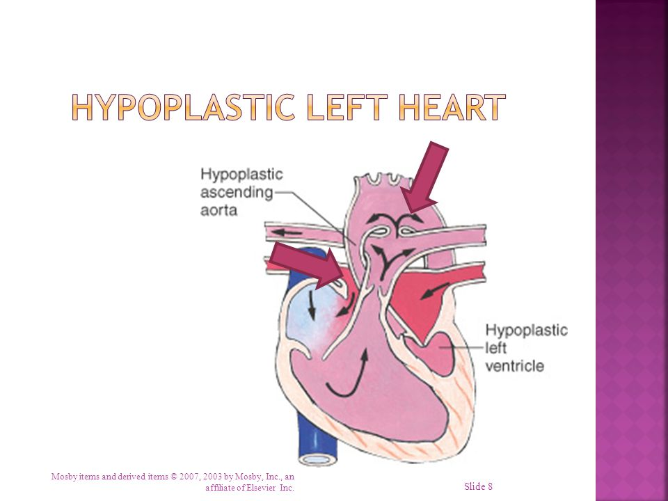  Abnormal connection between two sides of heart  Either the septum or the great vessels  Increased blood volume on right side of heart  Increased pulmonary blood flow  Decreased systemic blood flow Mosby items and derived items © 2007, 2003 by Mosby, Inc., an affiliate of Elsevier Inc.