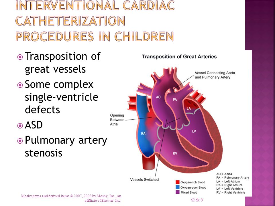  Transposition of great vessels  Some complex single-ventricle defects  ASD  Pulmonary artery stenosis Mosby items and derived items © 2007, 2003