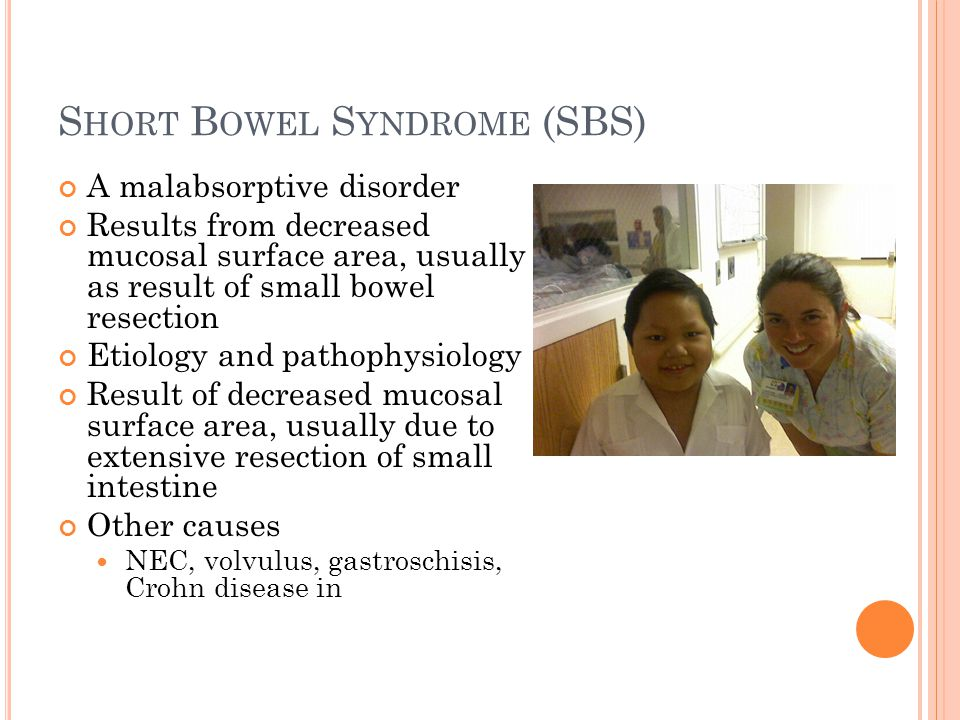 S HORT B OWEL S YNDROME (SBS) A malabsorptive disorder Results from decreased mucosal surface area, usually as result of small bowel resection Etiolog