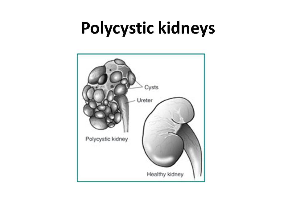 Polycystic kidneys