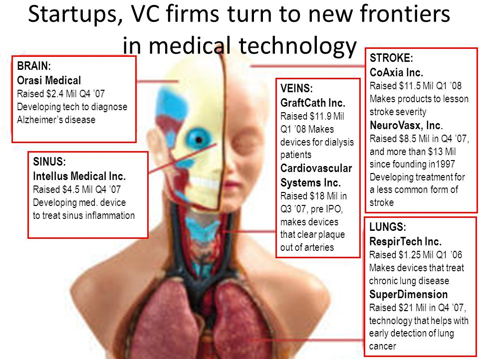 Startups, VC firms turn to new frontiers in medical technology BRAIN: Orasi Medical Raised $2.4 Mil Q4 '07 Developing tech to diagnose Alzheimer's dis
