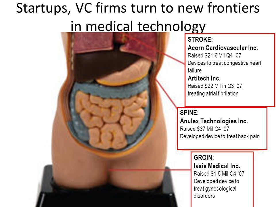 Startups, VC firms turn to new frontiers in medical technology STROKE: Acorn Cardiovascular Inc. Raised $21.6 Mil Q4 '07 Devices to treat congestive h