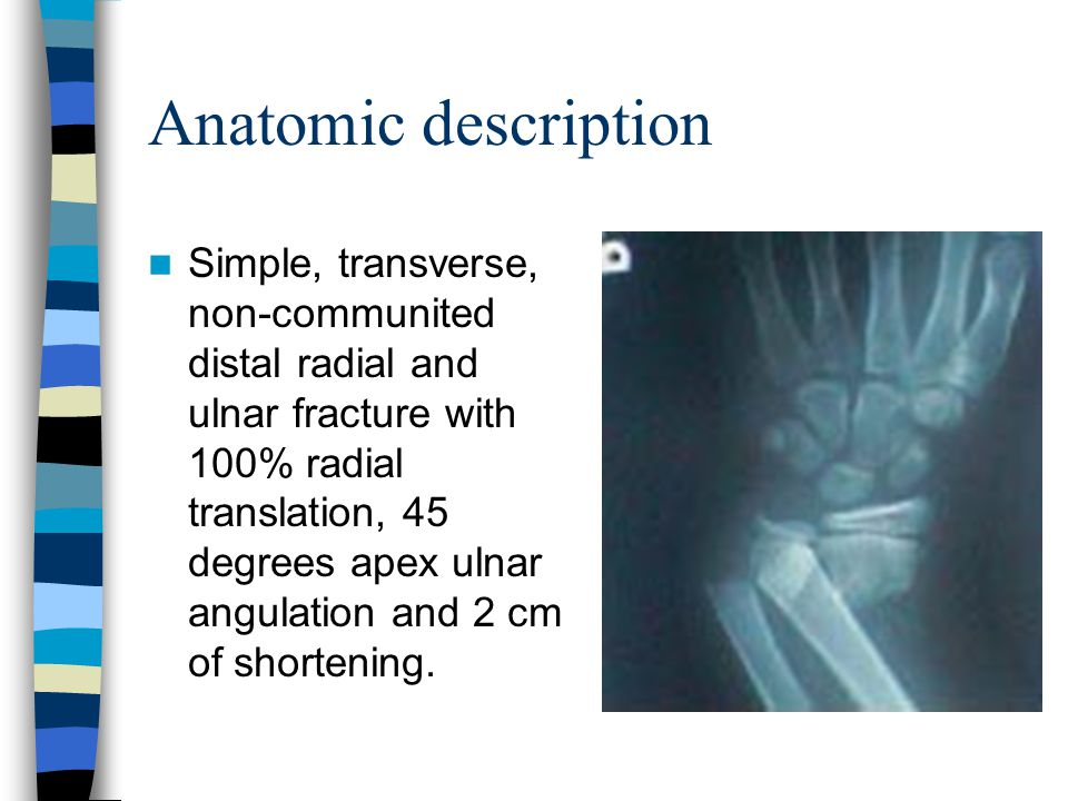 Anatomic description Simple, transverse, non-communited distal radial and ulnar fracture with 100% radial translation, 45 degrees apex ulnar angulation and 2 cm of shortening.