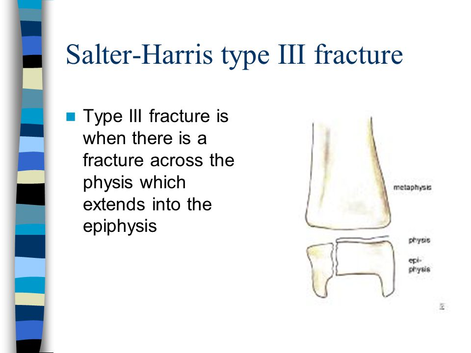 Salter-Harris type III fracture Type III fracture is when there is a fracture across the physis which extends into the epiphysis
