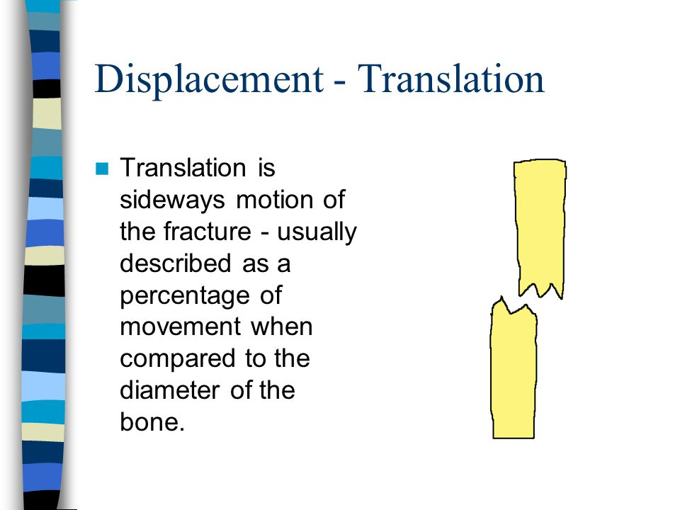 Displacement - Translation Translation is sideways motion of the fracture - usually described as a percentage of movement when compared to the diameter of the bone.