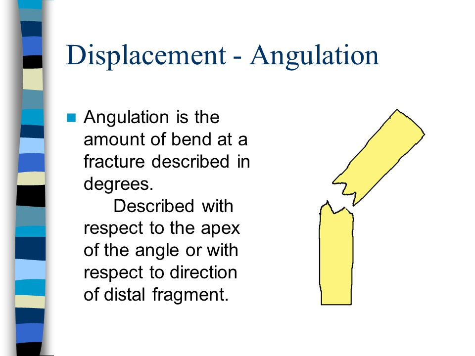 Displacement - Angulation Angulation is the amount of bend at a fracture described in degrees.