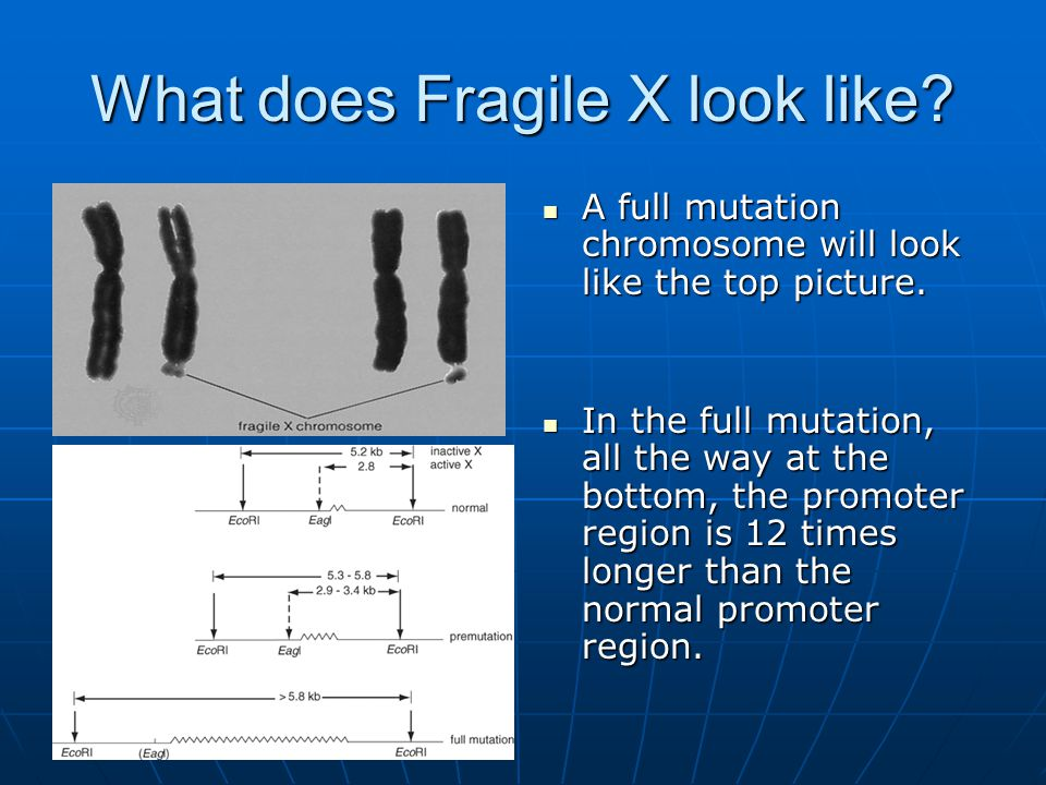 What does Fragile X look like? A full mutation chromosome will look like the top picture. A full mutation chromosome will look like the top picture. I