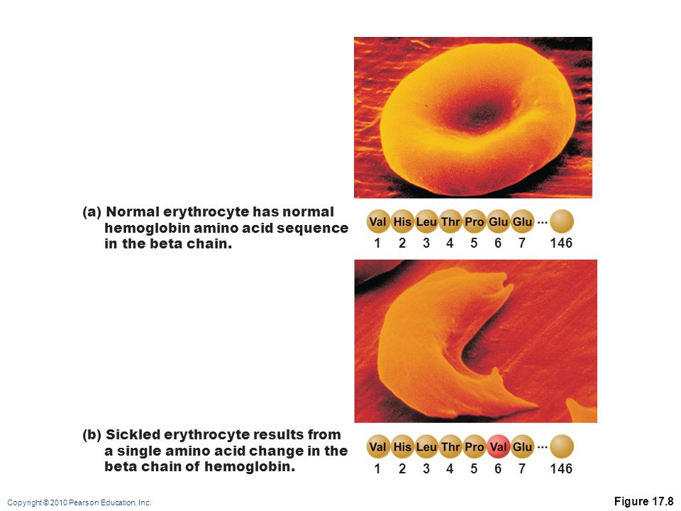 Copyright © 2010 Pearson Education, Inc. Figure 17.8 1234567146 1234567 (a) Normal erythrocyte has normal hemoglobin amino acid sequence in the beta c