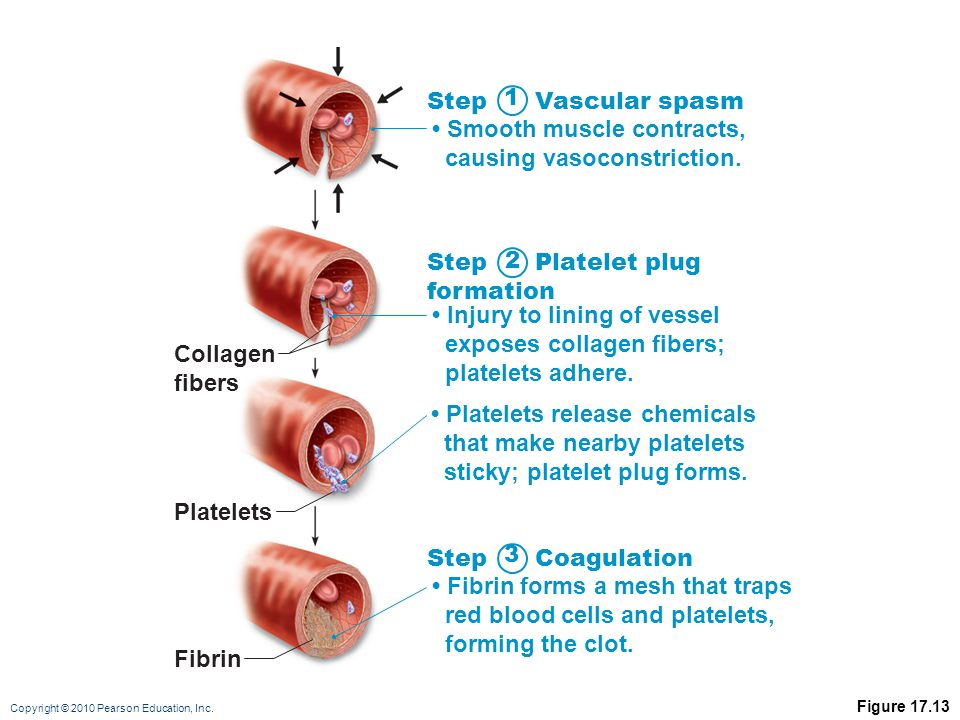 Copyright © 2010 Pearson Education, Inc. Figure 17.13 Collagen fibers Platelets Fibrin Step Vascular spasm Smooth muscle contracts, causing vasoconstr
