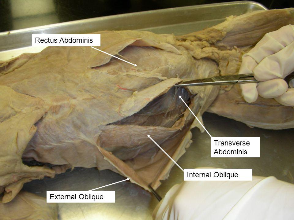 External Oblique Internal Oblique Transverse Abdominis Rectus Abdominis