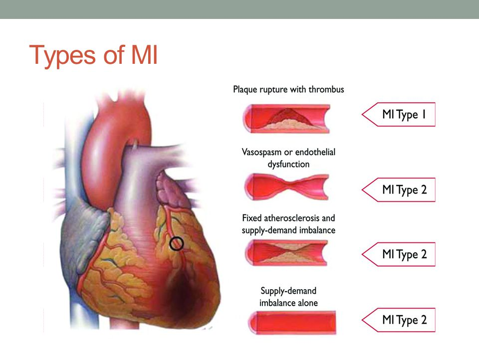 Types of MI