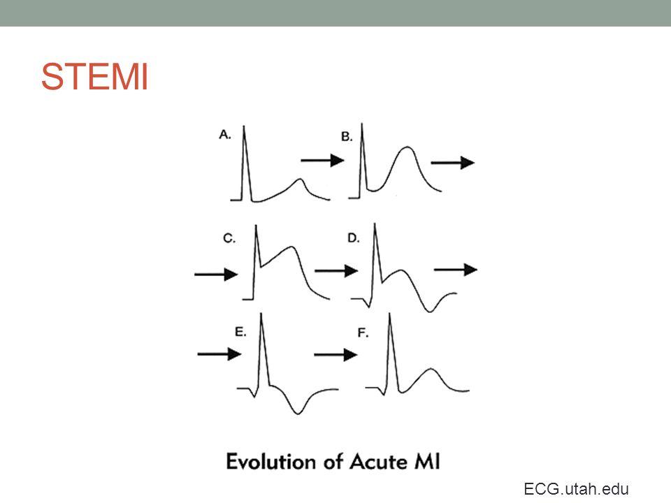 STEMI ECG.utah.edu