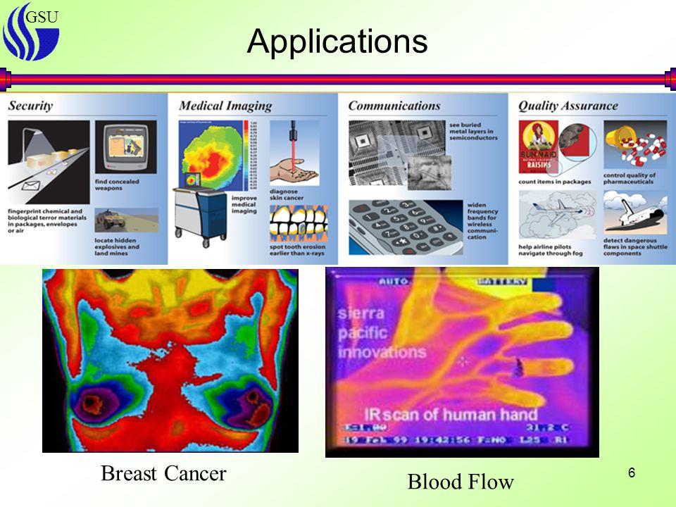 GSU 6 Applications Breast Cancer Blood Flow