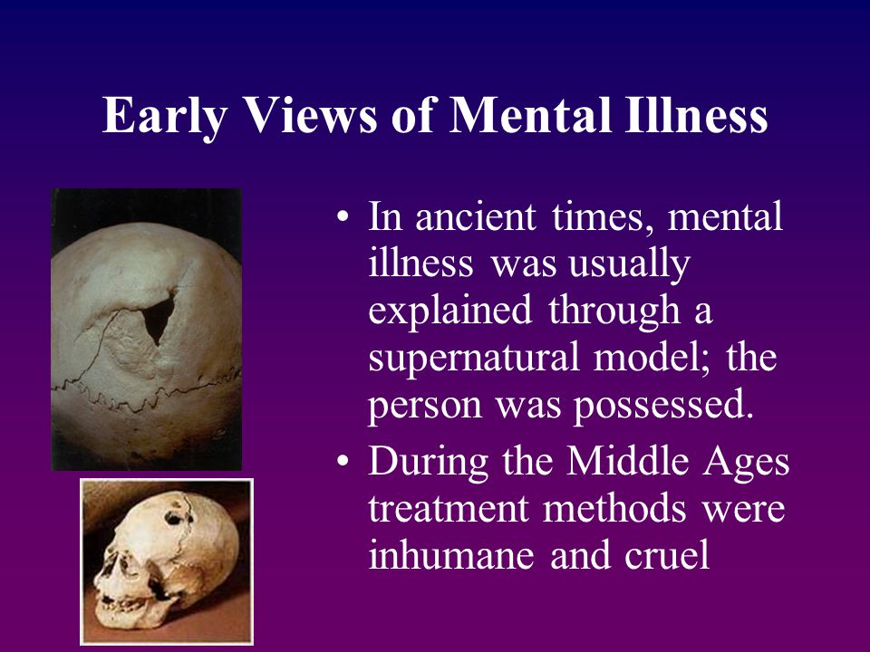 Early Views of Mental Illness In ancient times, mental illness was usually explained through a supernatural model; the person was possessed. During th