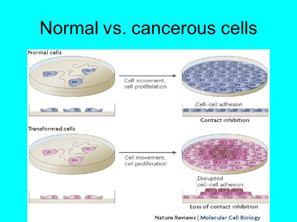 Normal vs. cancerous cells