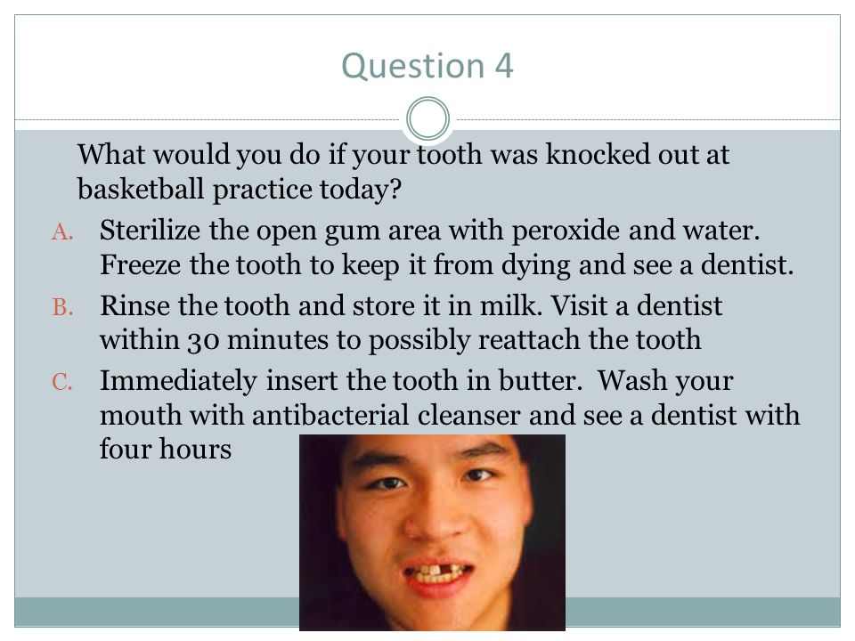 Question 4 What would you do if your tooth was knocked out at basketball practice today? A. Sterilize the open gum area with peroxide and water. Freez