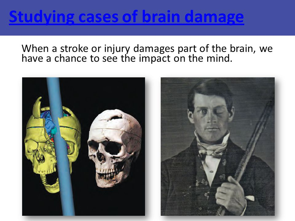 Studying cases of brain damage When a stroke or injury damages part of the brain, we have a chance to see the impact on the mind.