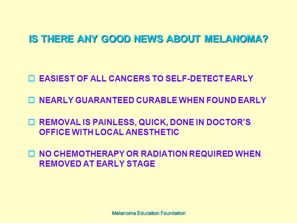Melanoma Education Foundation IS THERE ANY GOOD NEWS ABOUT MELANOMA.