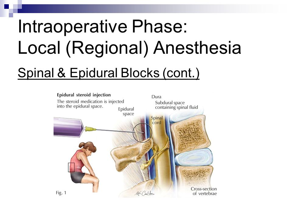 Intraoperative Phase: Local (Regional) Anesthesia Spinal & Epidural Blocks (cont.)