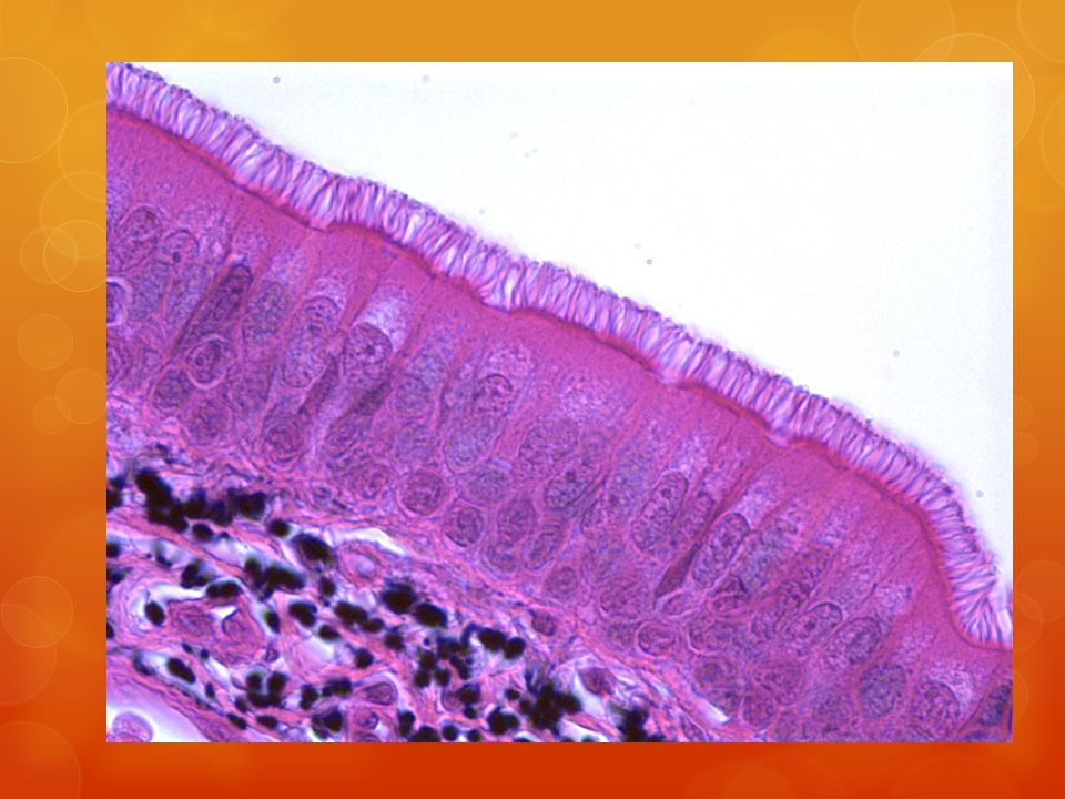Fibrocartilage Description: Matrix is similar but less firm than hyaline Function: ability to absorb compressive shock.