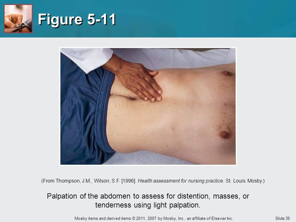 Slide 39 Mosby items and derived items © 2011, 2007 by Mosby, Inc., an affiliate of Elsevier Inc. Figure 5-11 Palpation of the abdomen to assess for d