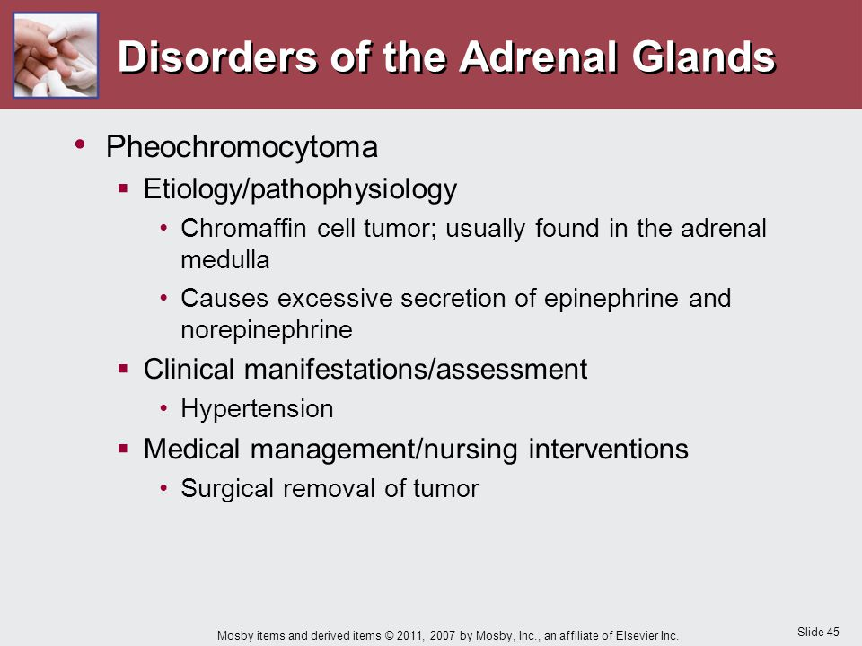 Slide 45 Mosby items and derived items © 2011, 2007 by Mosby, Inc., an affiliate of Elsevier Inc. Disorders of the Adrenal Glands Pheochromocytoma  E
