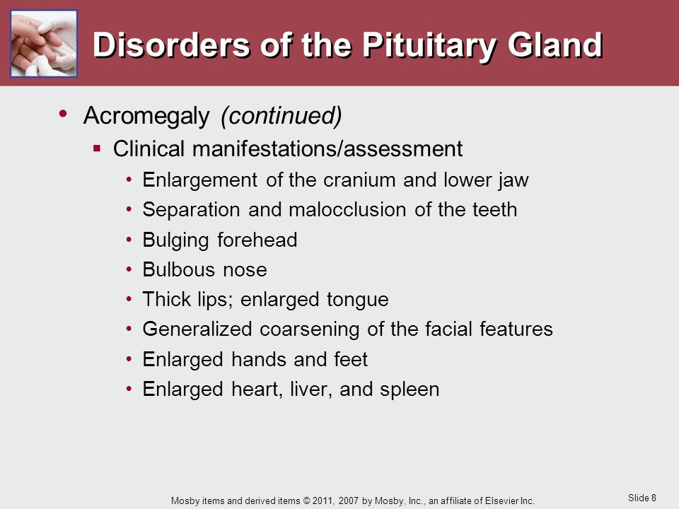 Slide 8 Mosby items and derived items © 2011, 2007 by Mosby, Inc., an affiliate of Elsevier Inc. Disorders of the Pituitary Gland Acromegaly (continue