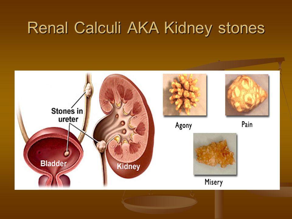 Renal Calculi AKA Kidney stones