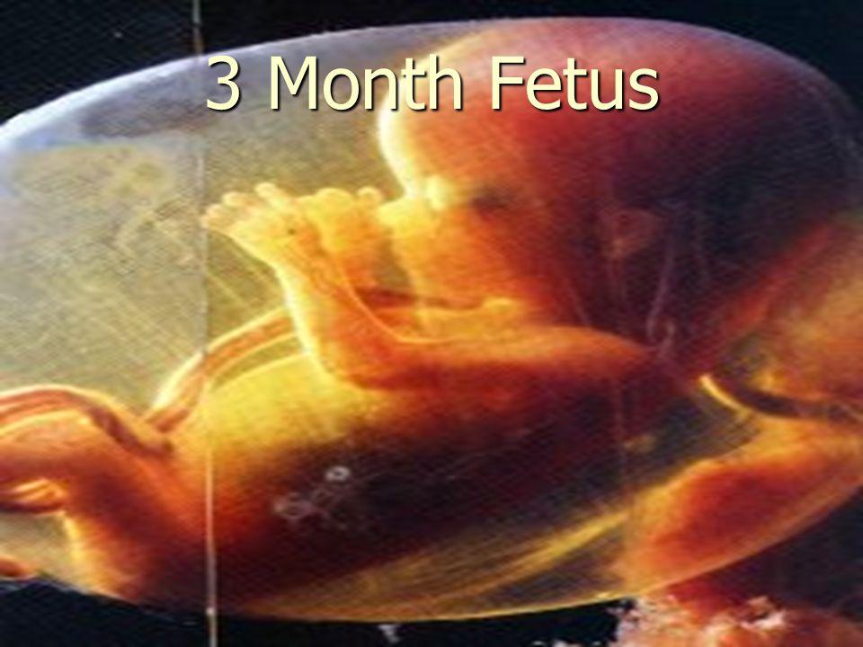 3 Month Fetus