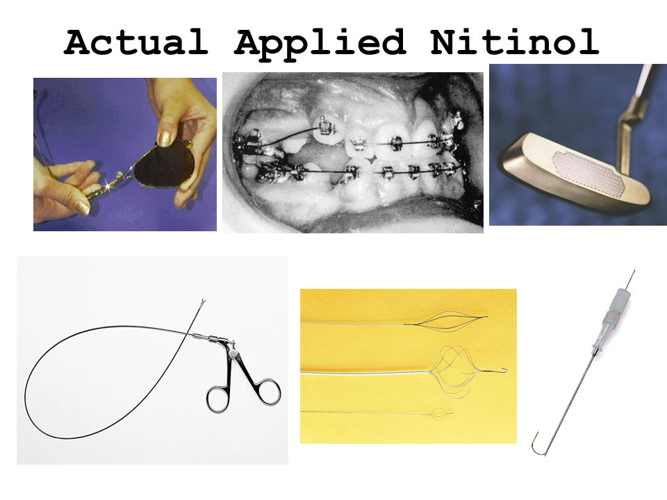 Actual Applied Nitinol