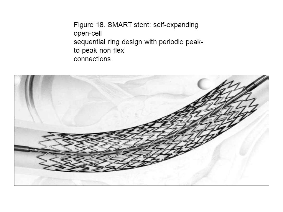 Figure 18. SMART stent: self-expanding open-cell sequential ring design with periodic peak- to-peak non-flex connections.