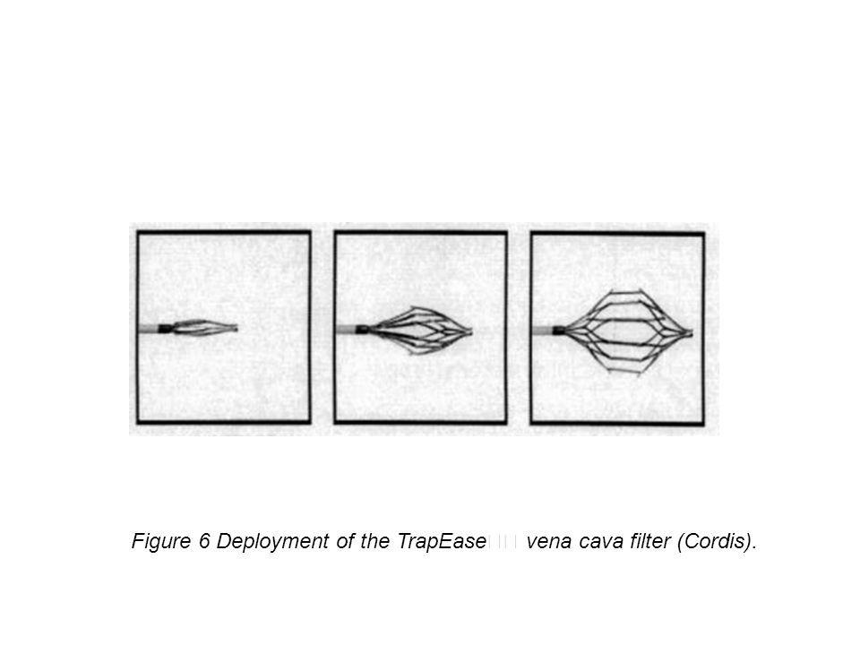 Figure 6 Deployment of the TrapEase vena cava filter (Cordis).