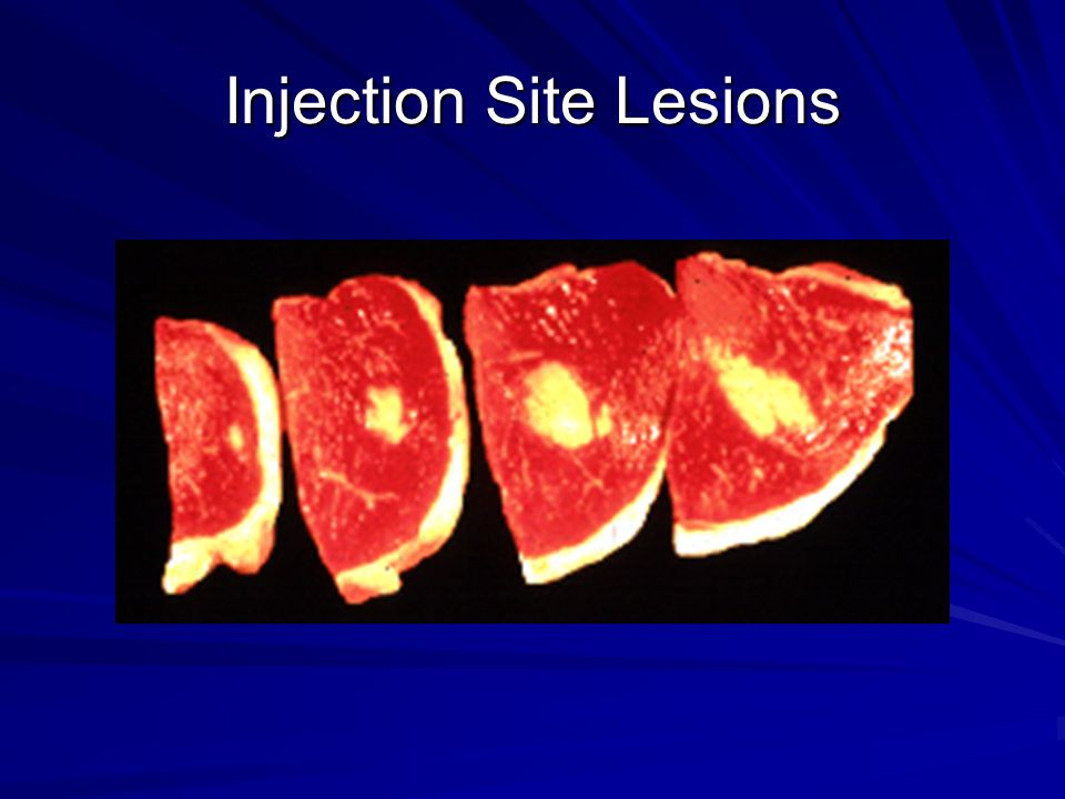 Injection Site Lesions