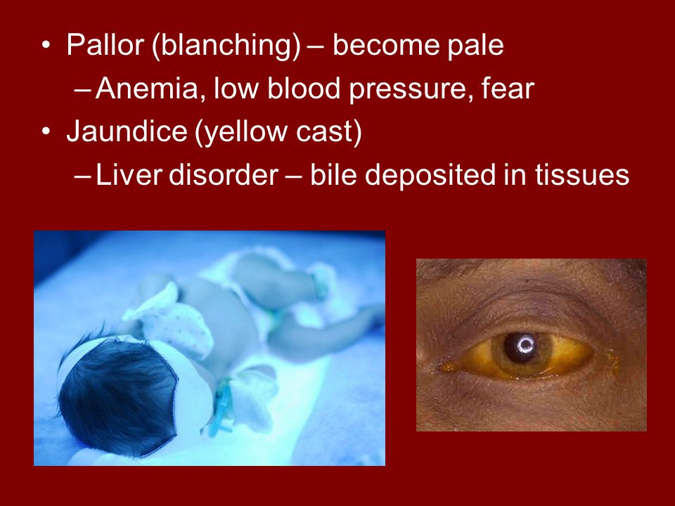 Pallor (blanching) – become pale –Anemia, low blood pressure, fear Jaundice (yellow cast) –Liver disorder – bile deposited in tissues