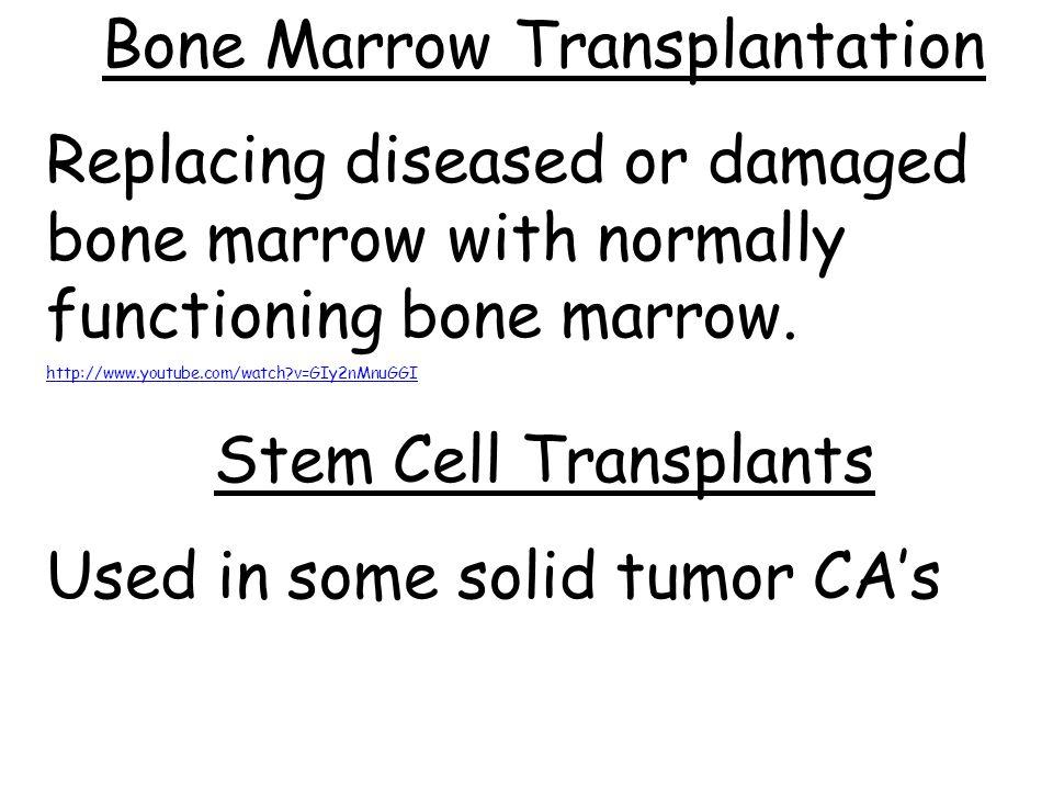 Bone Marrow Transplantation Replacing diseased or damaged bone marrow with normally functioning bone marrow. http://www.youtube.com/watch?v=GIy2nMnuGG