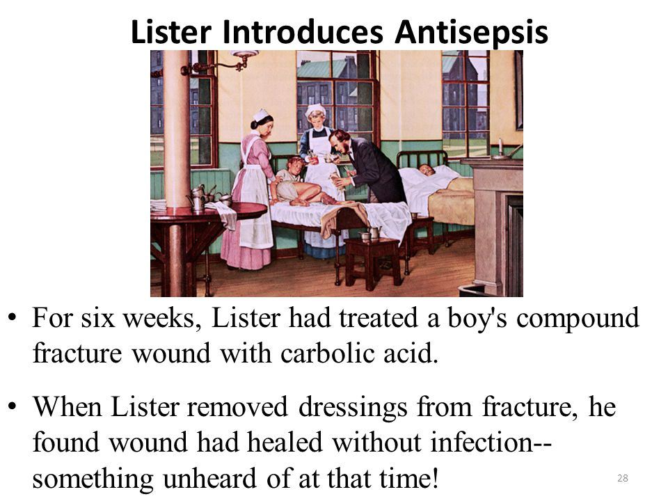 Lister Introduces Antisepsis For six weeks, Lister had treated a boy's compound fracture wound with carbolic acid. When Lister removed dressings from