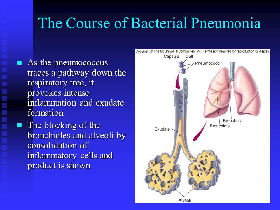 The Course of Bacterial Pneumonia As the pneumococcus traces a pathway down the respiratory tree, it provokes intense inflammation and exudate formati