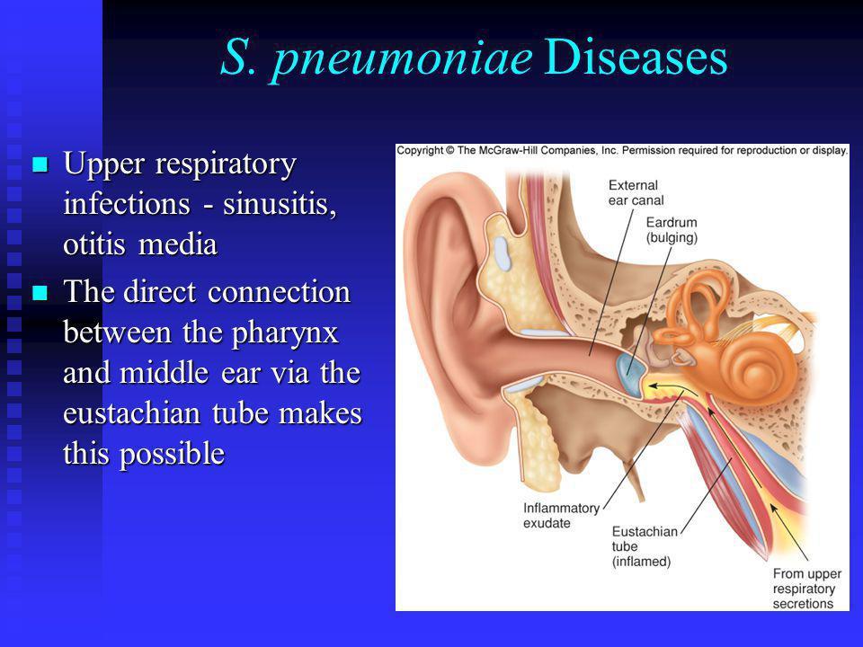 S. pneumoniae Diseases Upper respiratory infections - sinusitis, otitis media Upper respiratory infections - sinusitis, otitis media The direct connec